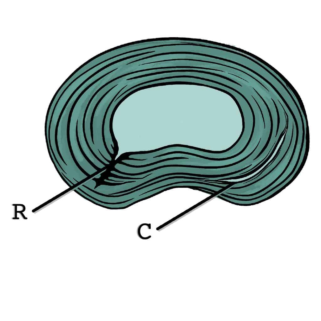 Fissure annulaire radiale ou concentrique