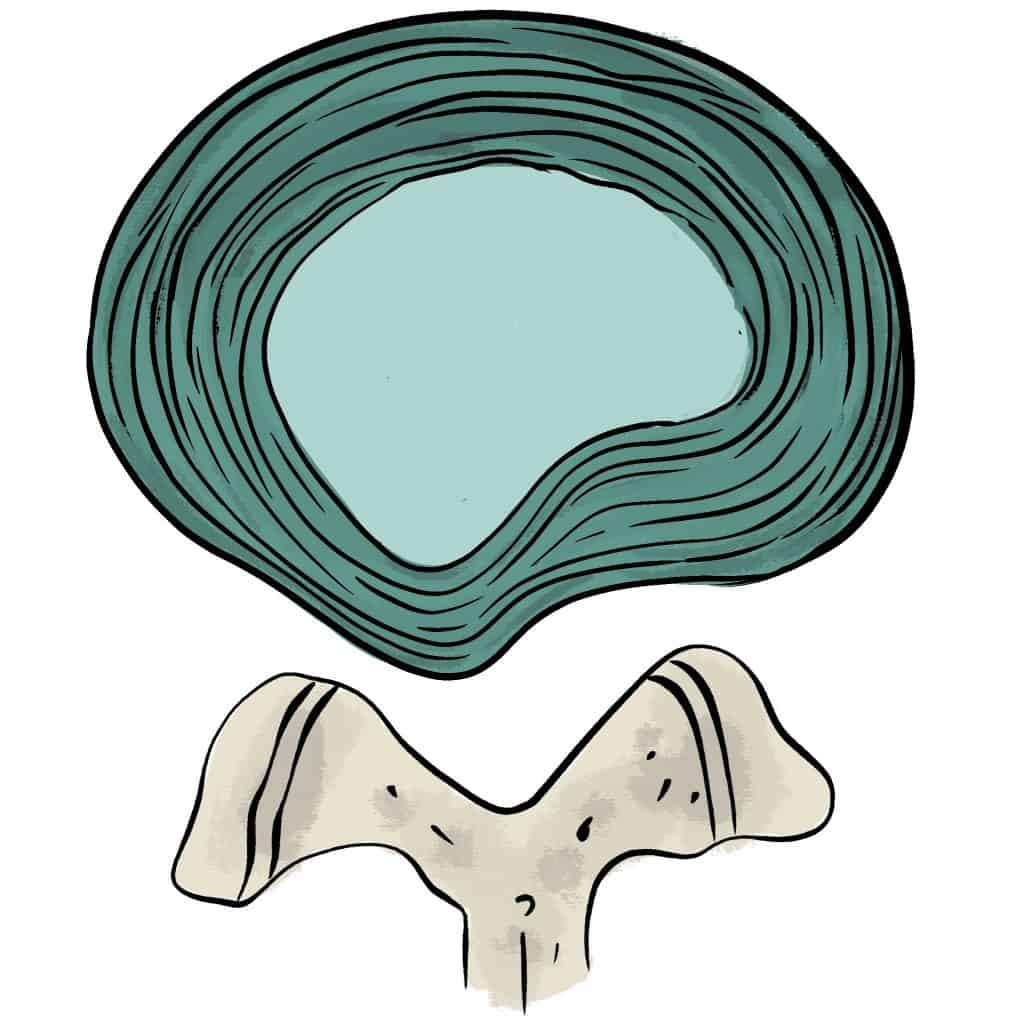 Protrusion discale paramédiane