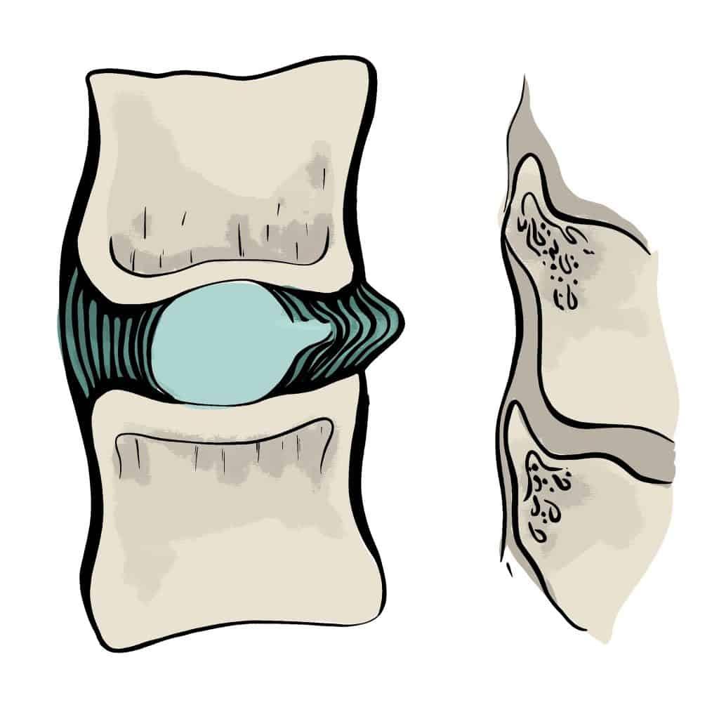 Protrusion discale vue latérale