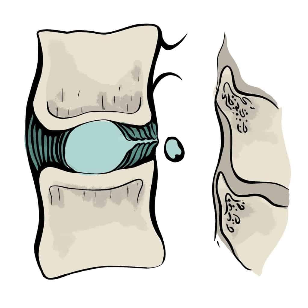 Séquestration discale ou fragment libre vue latérale