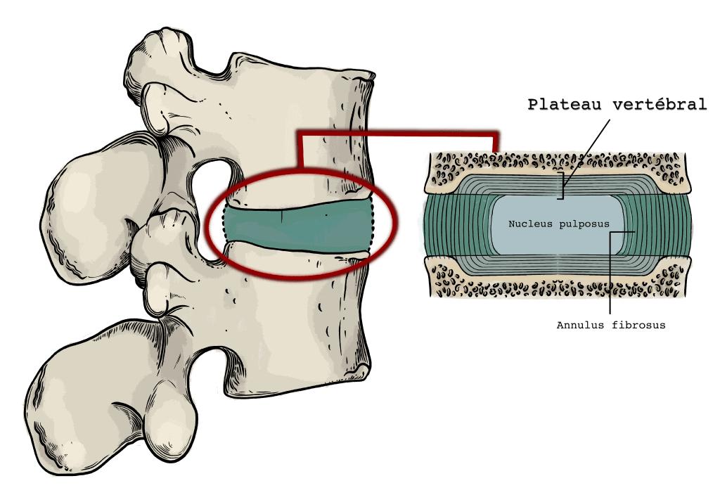 Schéma du disque intervertébral, siège des signes de Modic