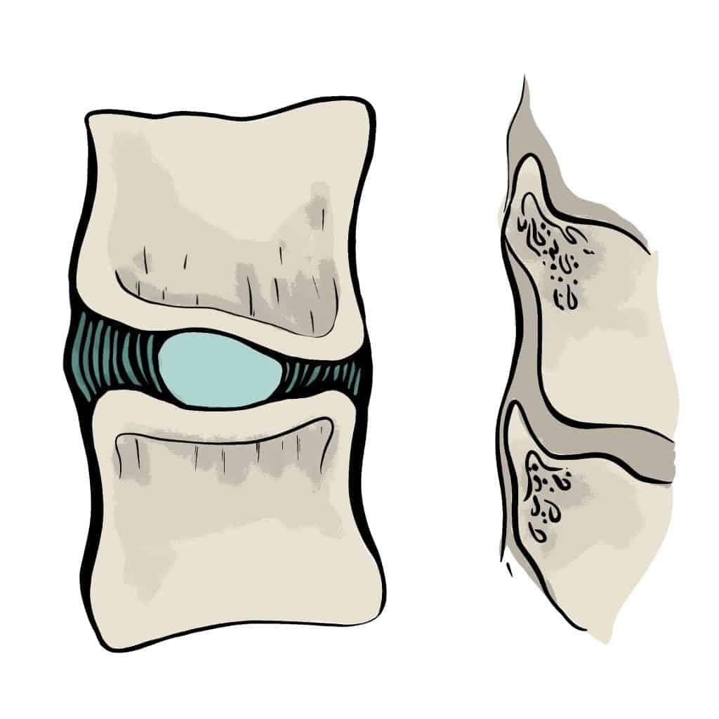 Pincement discal postérieur